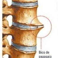 bico de papagaio, osteofitose, coluna, ma postura, sedentarismo, dores, hernia de disco, metodo mckenzie